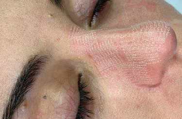 laser cicatrici acne